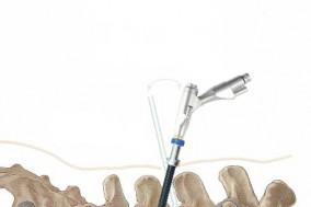 디지털 내시경을 통해 척추질환 안전하게 치료!